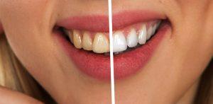 Piękne zęby to inwestycja