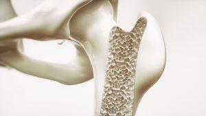Leczenie osteoporozy – jest na to sposób